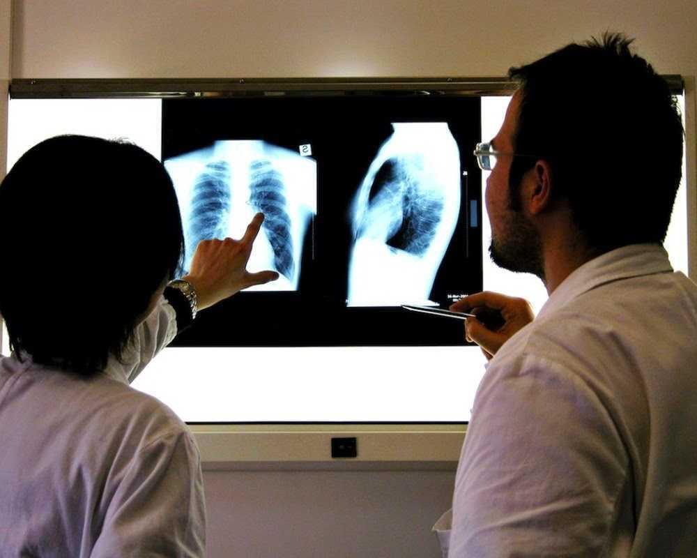 Cara Mencegah Dan Menyembuhkan Kanker Paru-Paru - SIMOMOT