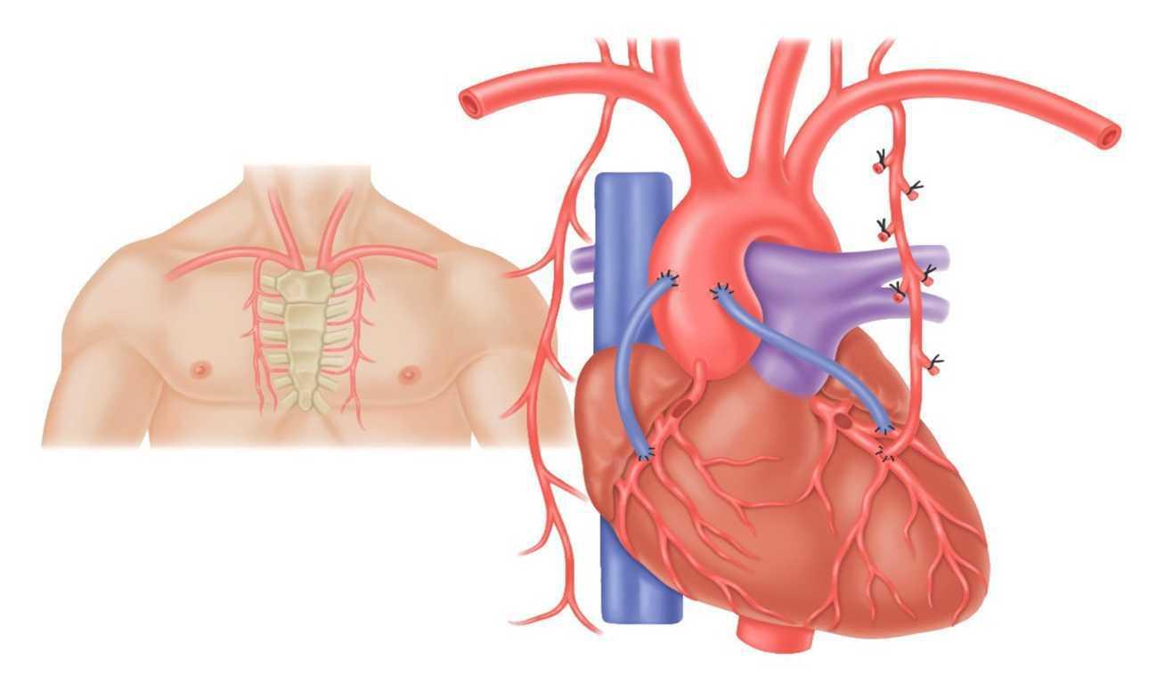 Питание при заболевании аорты