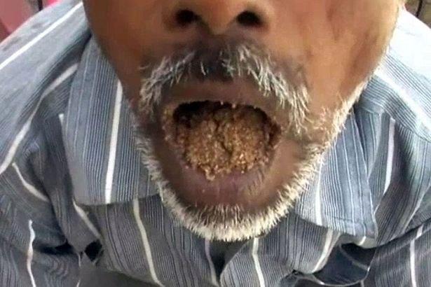 Kisah lelaki India yang rutin makan pasir dan kerikil selama 25 tahun