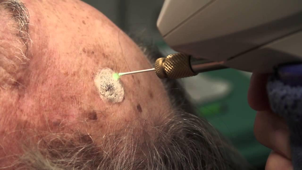 Cara kerja Cryosurgery, terapi nitrogen untuk mengobati kanker